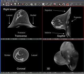 KONING PRESENTE UNE NOUVELLE 3D CT SCAN SYSTEME POUR L'EXAMEN DES GLANDES MAMMAIRES - Bimedis - 1