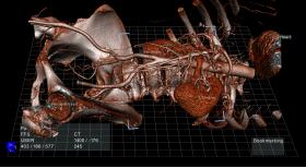 ECHOPIXEL DEVELOPS TRUE 3D VIEWER THAT CONVERTS STANDARD 2D IMAGES TO INTERACTIVE 3D MODELS - Bimedis - 1