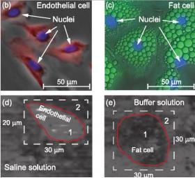 VISUALISATION 3D DES CELLULES PAR LE SON SANS LES ENDOMMAGER - Bimedis - 1
